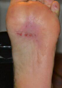 Подошва ступни ноги перфорированная и сожженная ультразвуком.